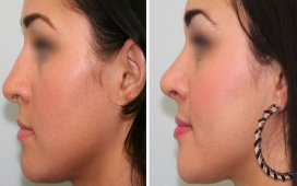 rhinoplasty(Nose Surgery)
