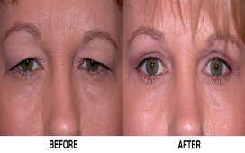Blepharoplasty(Eyelid Surgery)